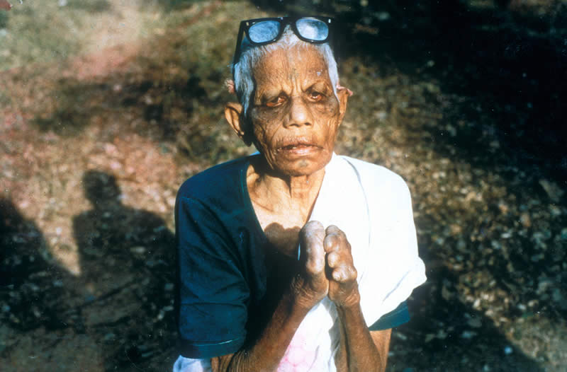 Community Eye Health Journal 187 Leprosy And The Eye